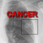 Is Cancer Curable?
