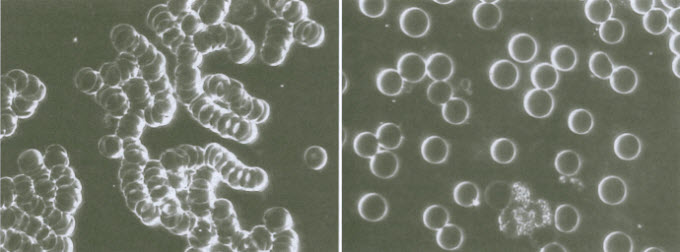 red-cells-BEFORE-and-AFTER-EFT